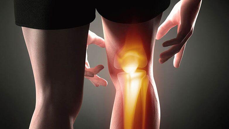 artróza pánve